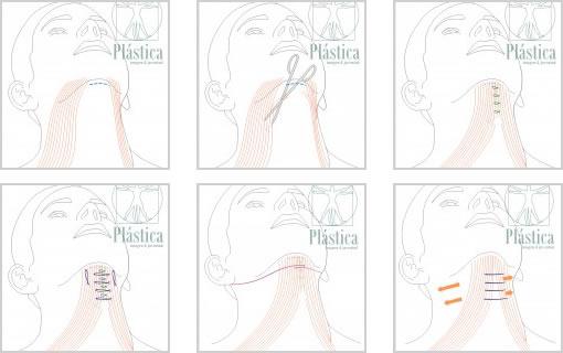 Como se tiemplan los músculos en el cuello