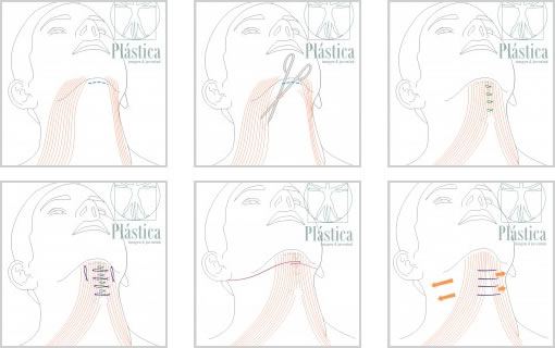 Cervicoplastia