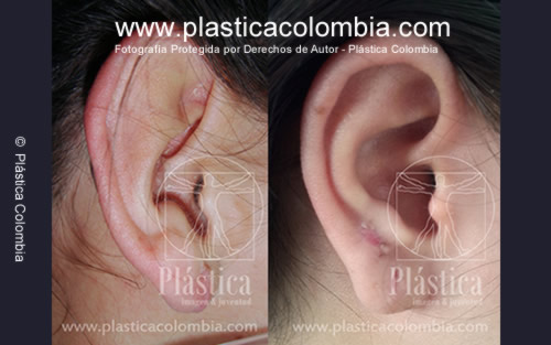 Cicatrices Piercings Orejas Plastica Colombia