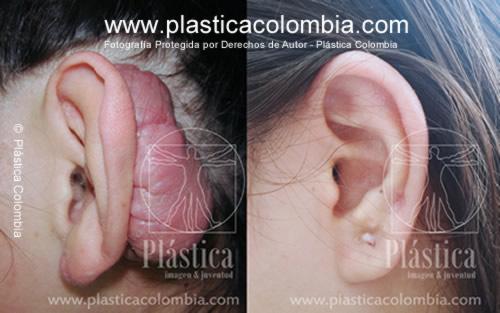 Fotografía  cicatriz  queloide en oreja