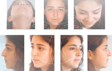 El masaje cosmético a la persona