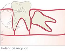 Cordal Retención Angular