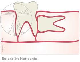 Cordal Retención Horizontal
