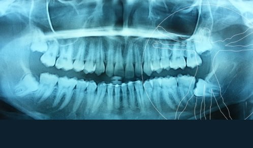 Radiografía de un paciente con cordales antes de la cirugía