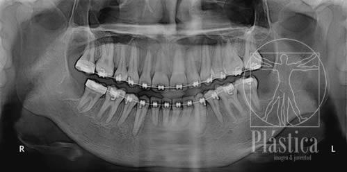 Radiografía Cordales con Brakets