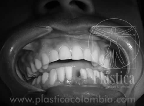 Ilustración Pérdida Dentaria