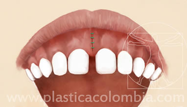 Frenillectomia Labial