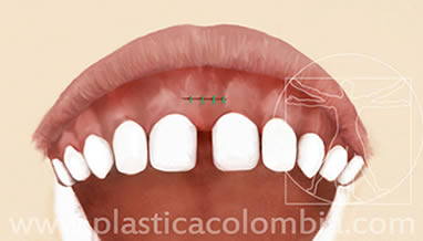 Frenillectomia Labial 2
