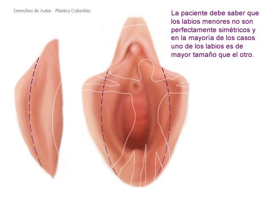 Labios Menores Genitales