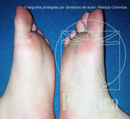 foto de dos pies con resequedad