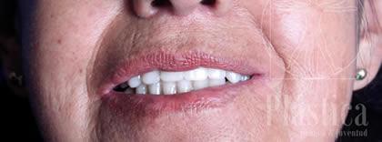 caso de implante dental