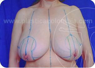 Marcación mamoplastia rdduccion