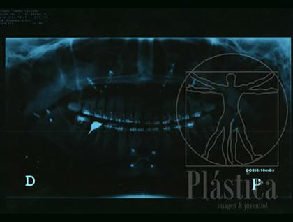 Foto de una radiografía POS de Mentoplastia de Avance