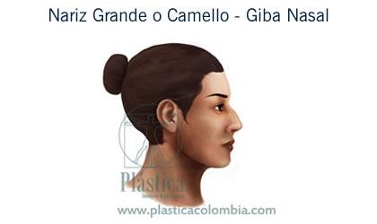 cirugía nariz