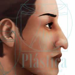 ilustracion nariz punta nasal caída