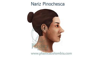 Nariz de Pinocho, (Pinochesca)