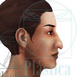 ilustracion nariz caída