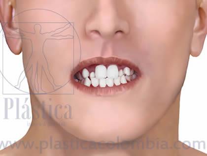 Apiñamiento frontal closeup