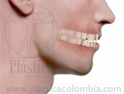 Diastemas closeup
