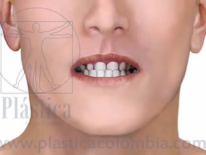 Mordida cruzada anterior frontal closeup