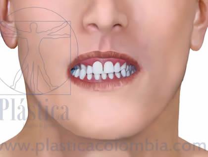 Mordida cruzada posterior frontal closeup