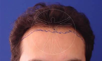Marcación del área alopecia