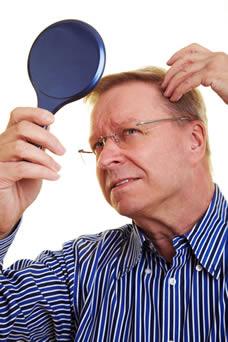 Como parar la alopecia hereditaria al hombre