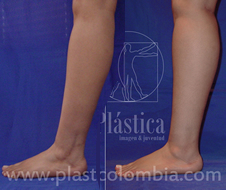 Implante Pantorrillas Piernas