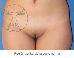 Vaginal Normal
