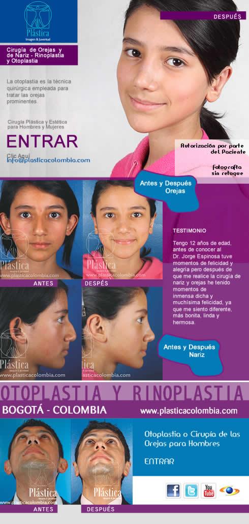 promo testimonios cirugia de las orejas