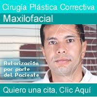 Cirugías Maxilofaciales