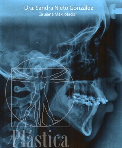 Radiografía de  Mandíbula y Avance mentón