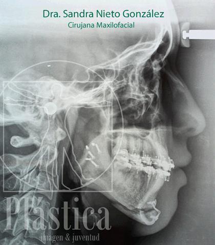 Radiografía de Avance mentón y mandíbula