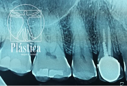 Radiografía implante dental pre quirurgica