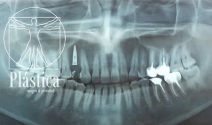 Radiografía - Colocación Implante Dental - Rehabilitador