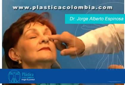 Dr. Jorge Alberto Espinosa Reyes-Paciente BOTOX