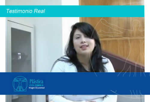 Testimonio Real - Paciente cirugía gingivioplastia, rinoplastia y otoplastia